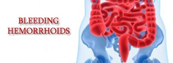 Things you should know about a bleeding hemorrhoid